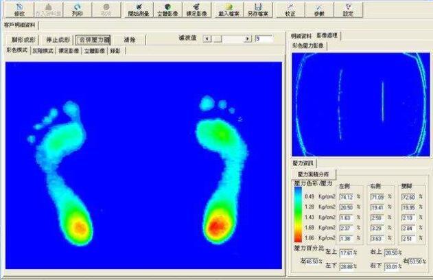 基于立体足迹采集系统的足迹深度信息特征分析
